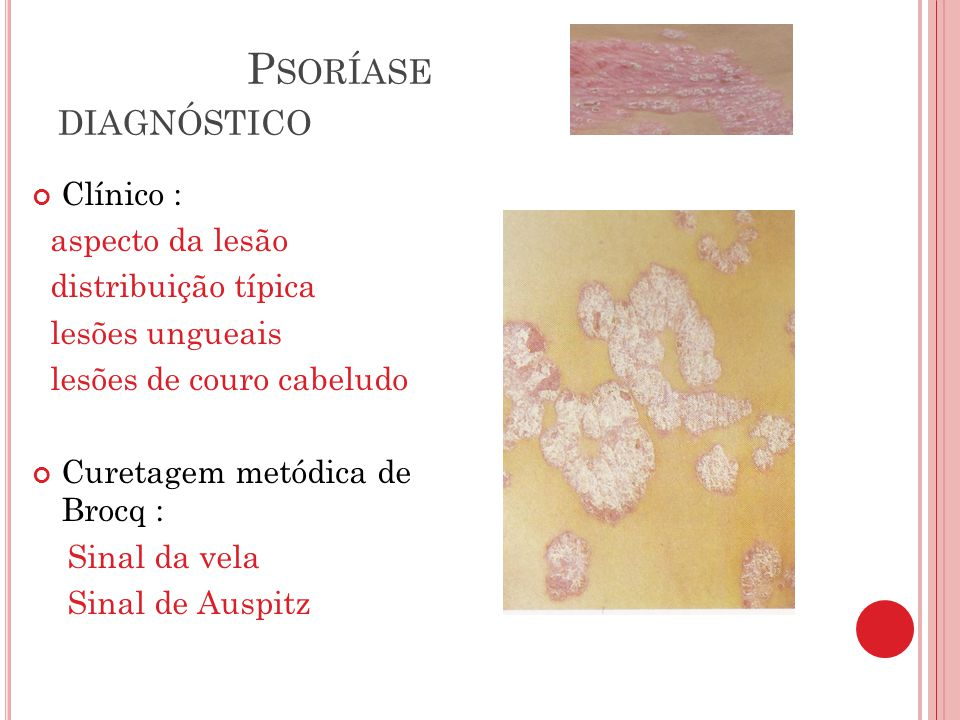 Psoríase diagnóstico Clínico : aspecto da lesão distribuição típica