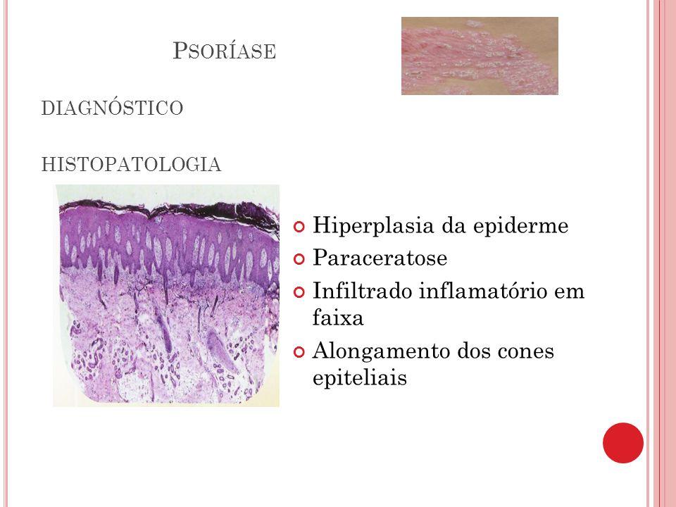 Psoríase diagnóstico histopatologia