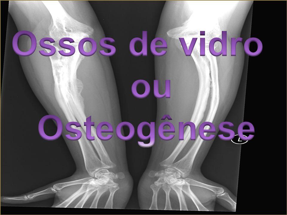 Ossos de vidro ou Osteogênese