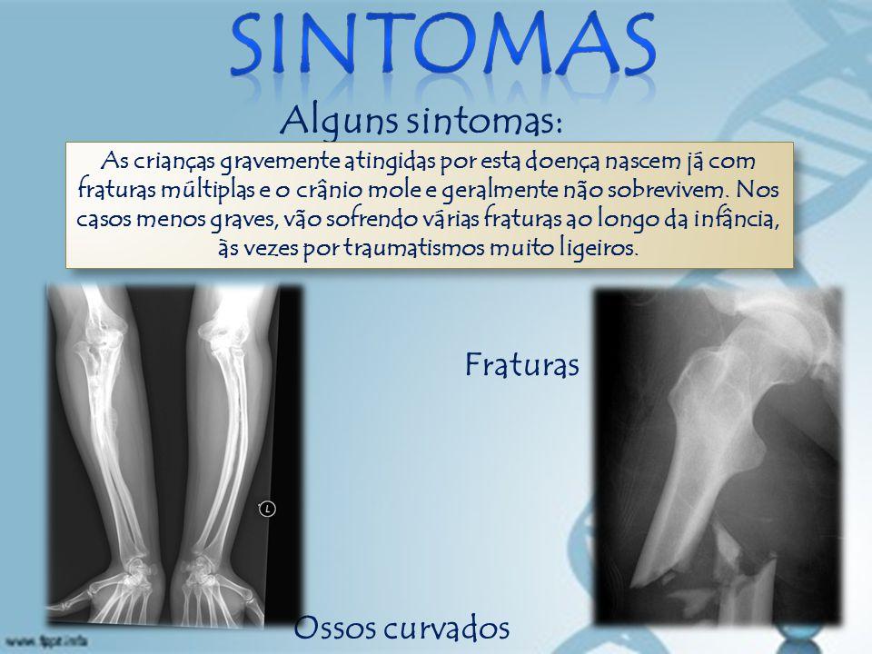 sintomas Alguns sintomas: Fraturas Ossos curvados