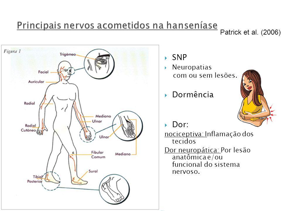 Principais nervos acometidos na hanseníase