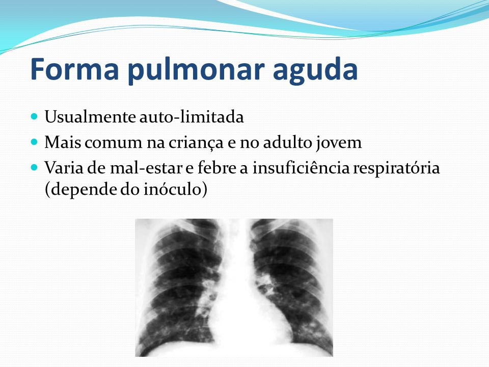 Forma pulmonar aguda Usualmente auto-limitada
