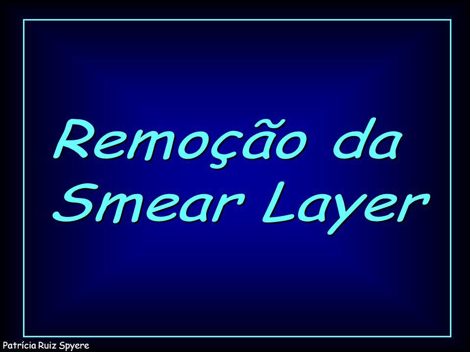 Remoção da Smear Layer Patrícia Ruiz Spyere