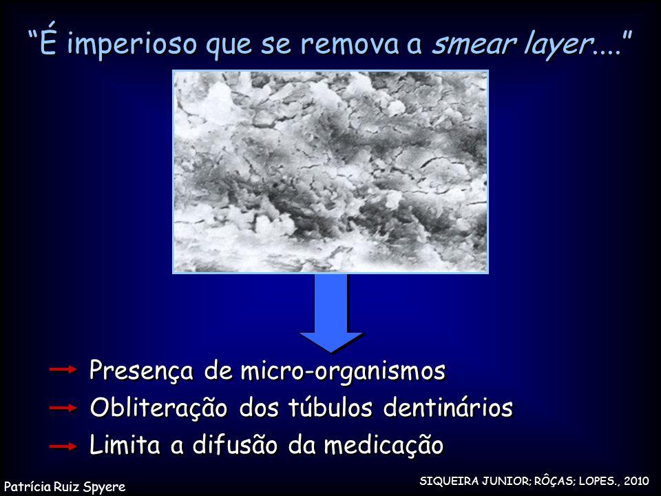 É imperioso que se remova a smear layer....