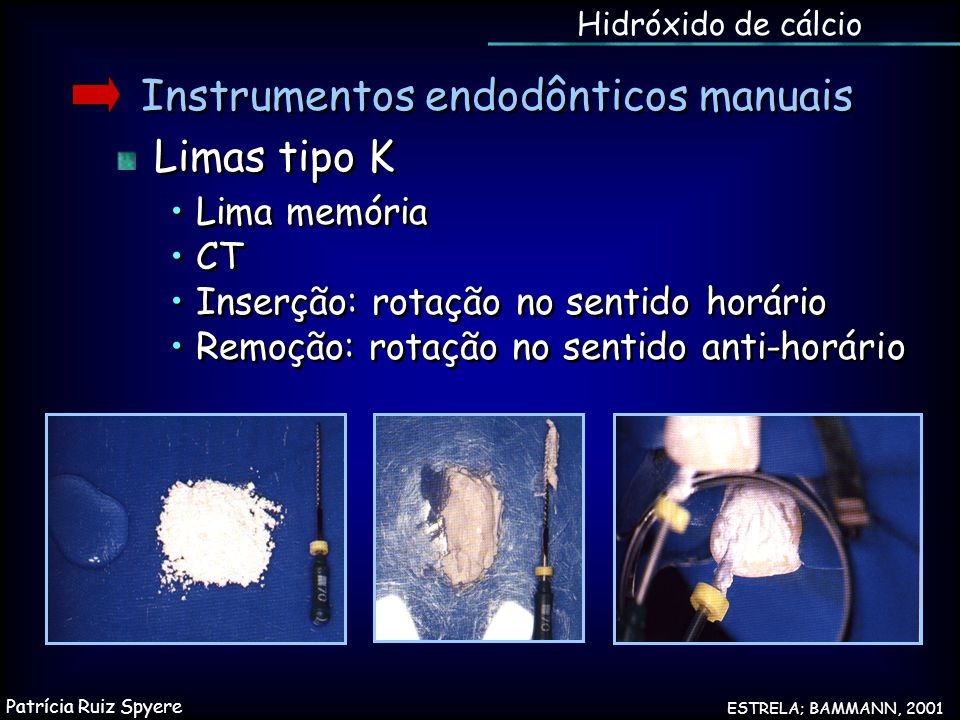 Instrumentos endodônticos manuais Limas tipo K