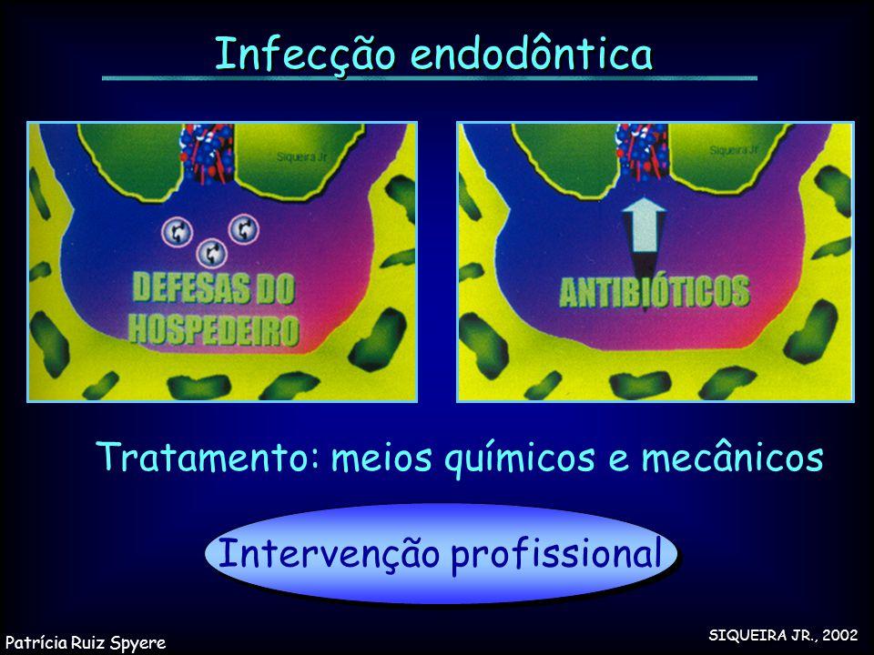 Infecção endodôntica Tratamento: meios químicos e mecânicos