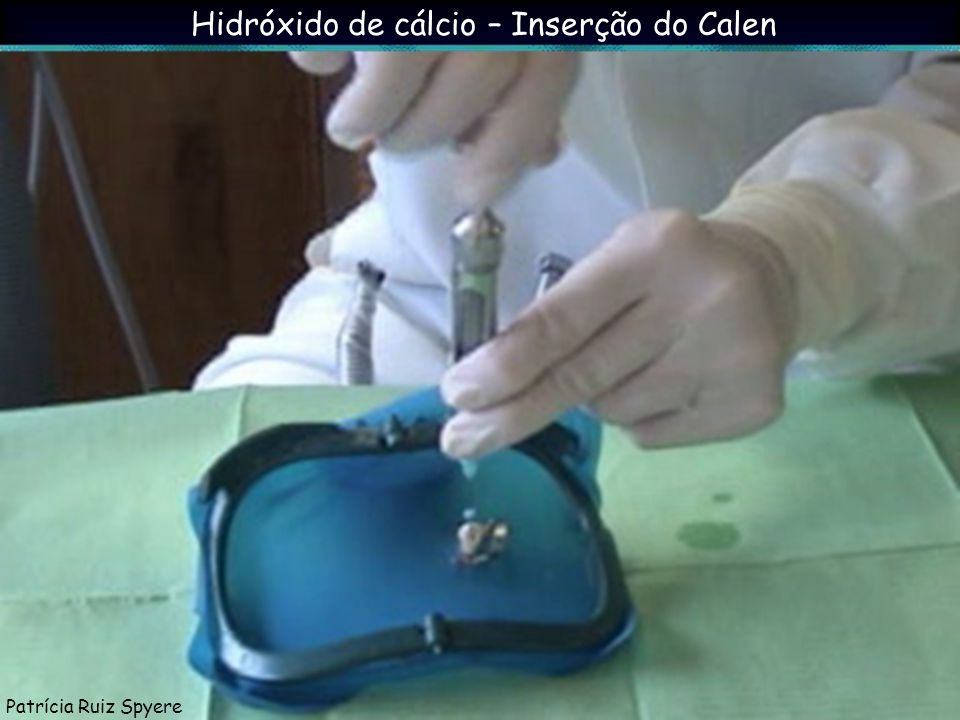 Hidróxido de cálcio – Inserção do Calen