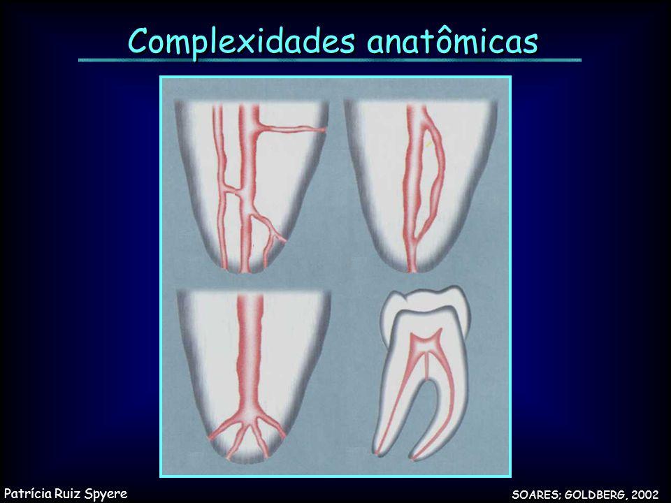 Complexidades anatômicas