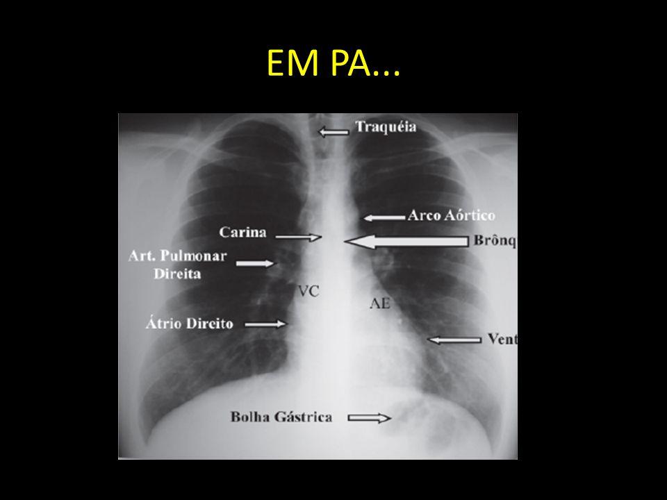 EM PA...