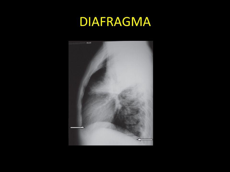 DIAFRAGMA Diafragma: direito é mais superior que esquerdo