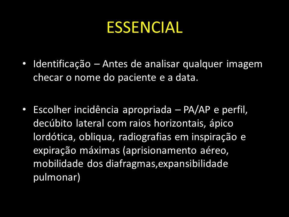 ESSENCIAL Identificação – Antes de analisar qualquer imagem checar o nome do paciente e a data.