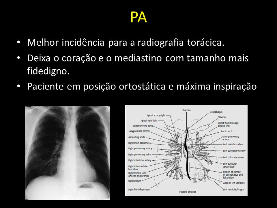 PA Melhor incidência para a radiografia torácica.