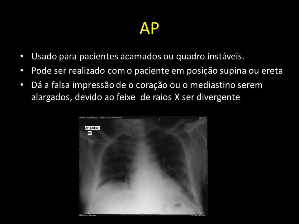 AP Usado para pacientes acamados ou quadro instáveis.
