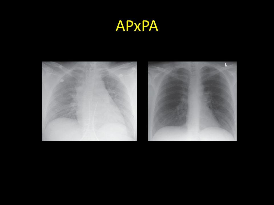 APxPA AP x PA