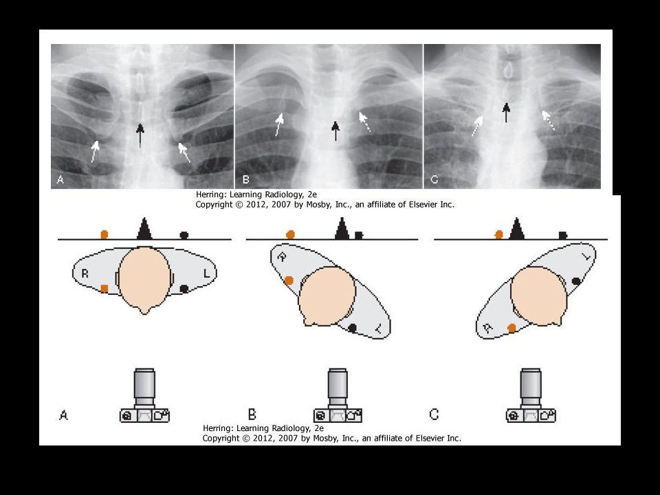 Rotação Processo espinhoso deve se distanciar equivalentemente entre as partes mediais da clavícula de cada lado.