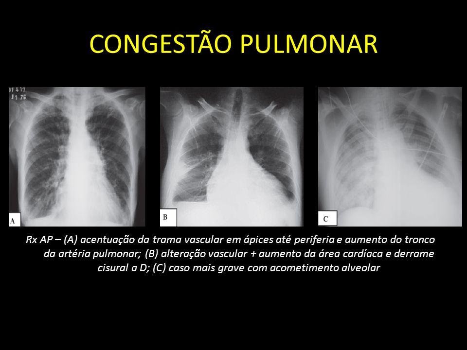 CONGESTÃO PULMONAR