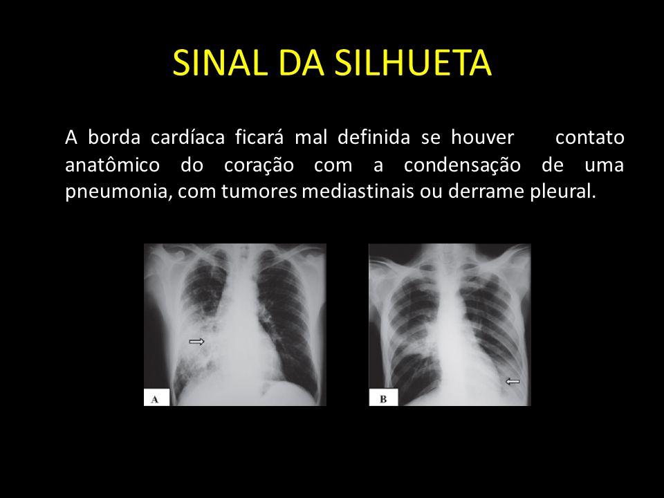 SINAL DA SILHUETA