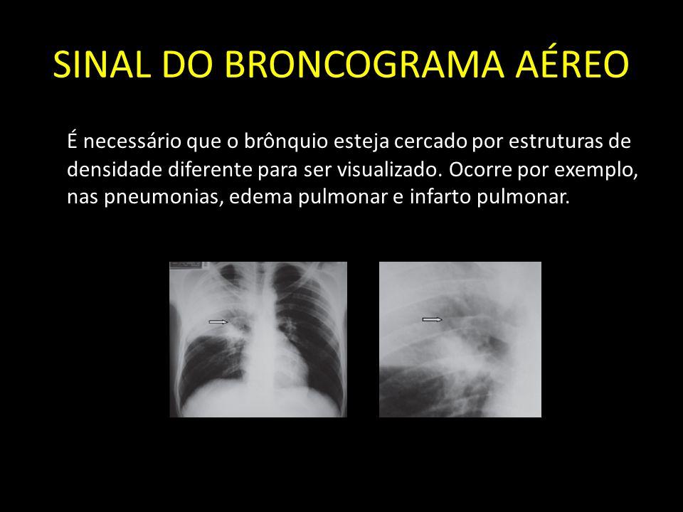 SINAL DO BRONCOGRAMA AÉREO