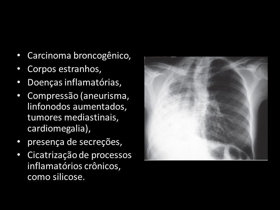 Carcinoma broncogênico, Corpos estranhos, Doenças inflamatórias,