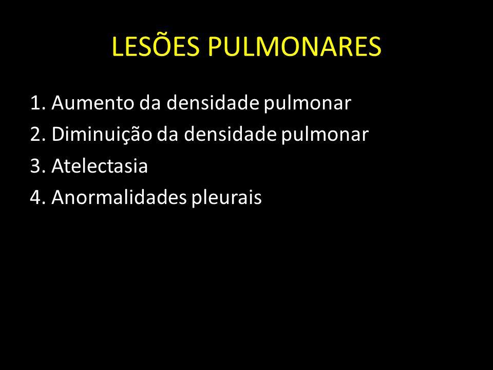 LESÕES PULMONARES 1. Aumento da densidade pulmonar 2.