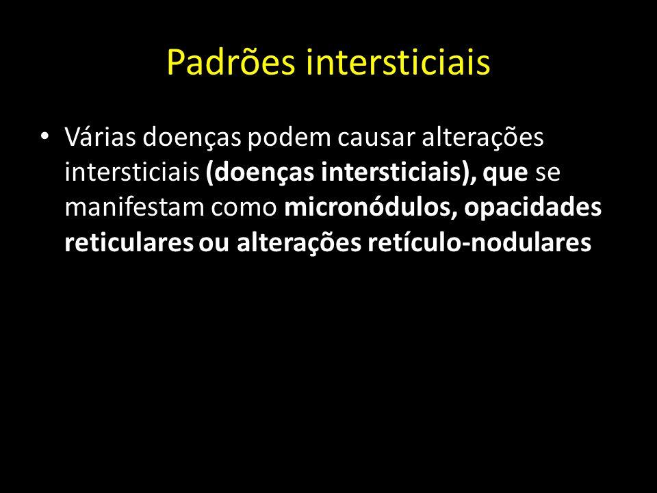 Padrões intersticiais