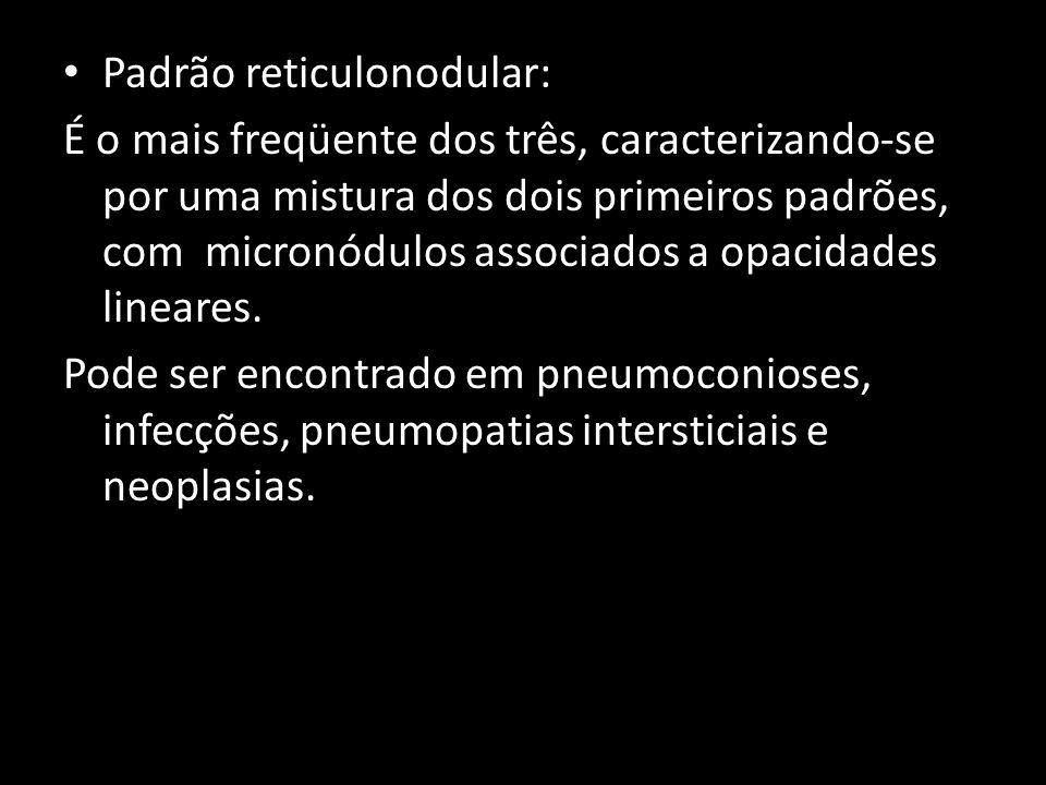 Padrão reticulonodular: