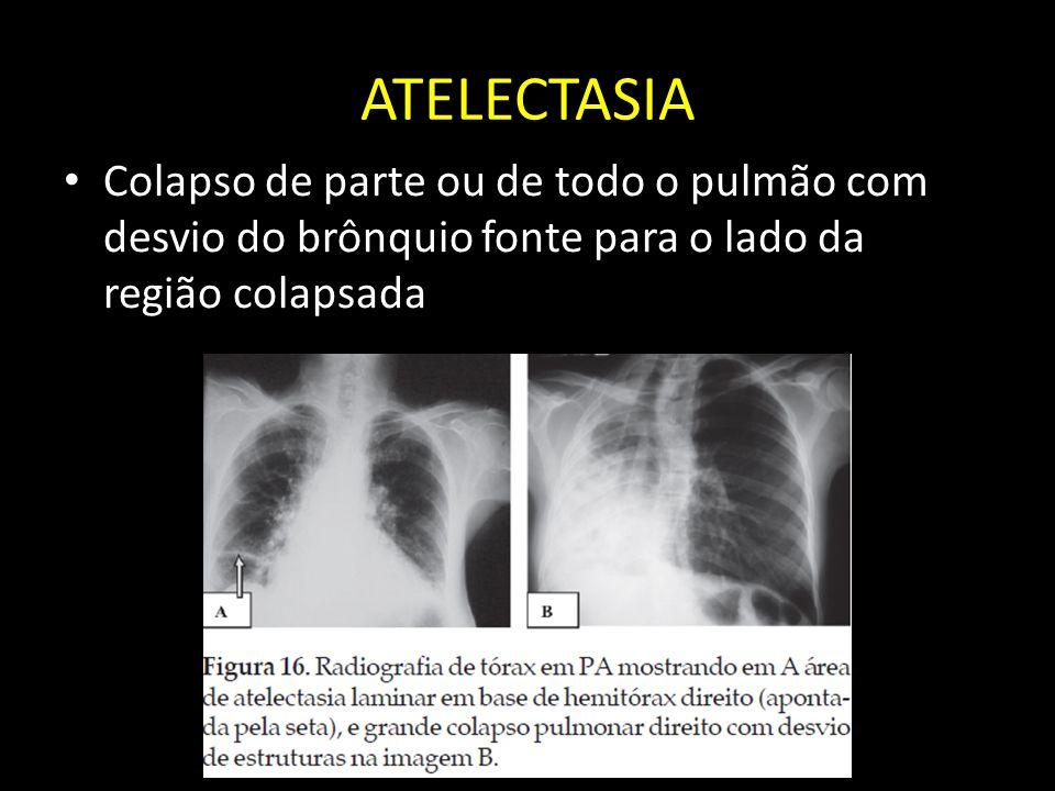 ATELECTASIA Colapso de parte ou de todo o pulmão com desvio do brônquio fonte para o lado da região colapsada.