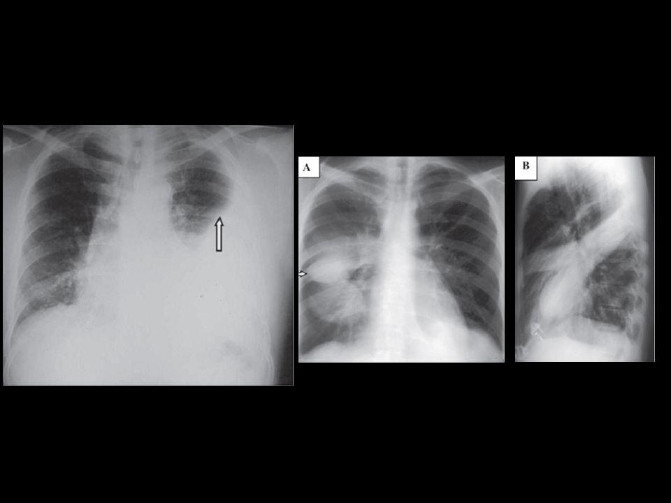 Figura da esquerda: Radiografia de torax em AP evidenciando volumoso derrame pleural a esquerda com menisco apontado pela seta