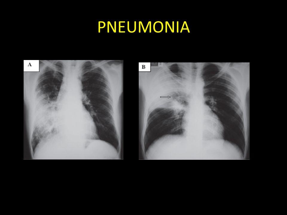 PNEUMONIA A radiografia pode apresentar consolidação parenquimatosa, infiltrado focal com aumento da radiodensidade, onde é possível por vezes a.