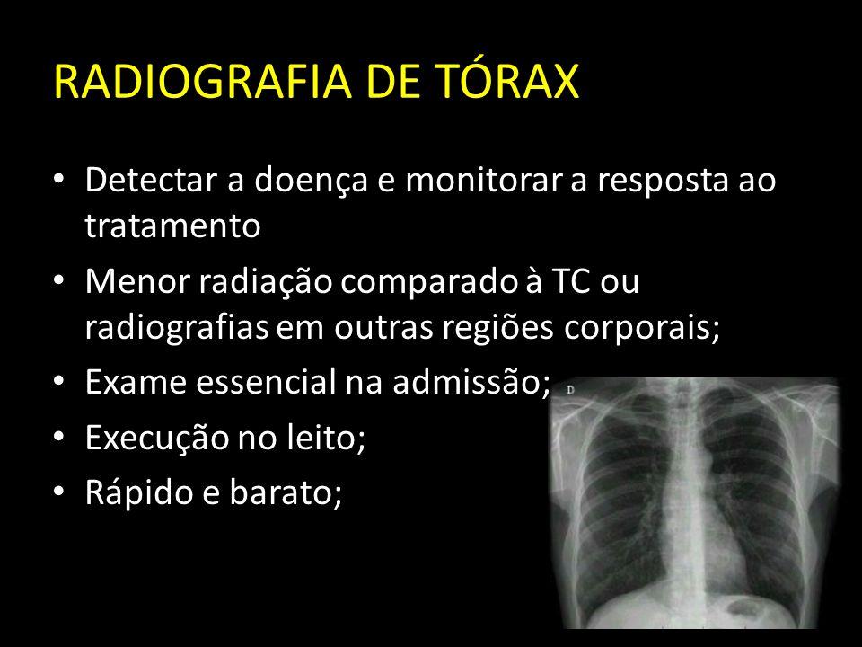 RADIOGRAFIA DE TÓRAX Detectar a doença e monitorar a resposta ao tratamento.