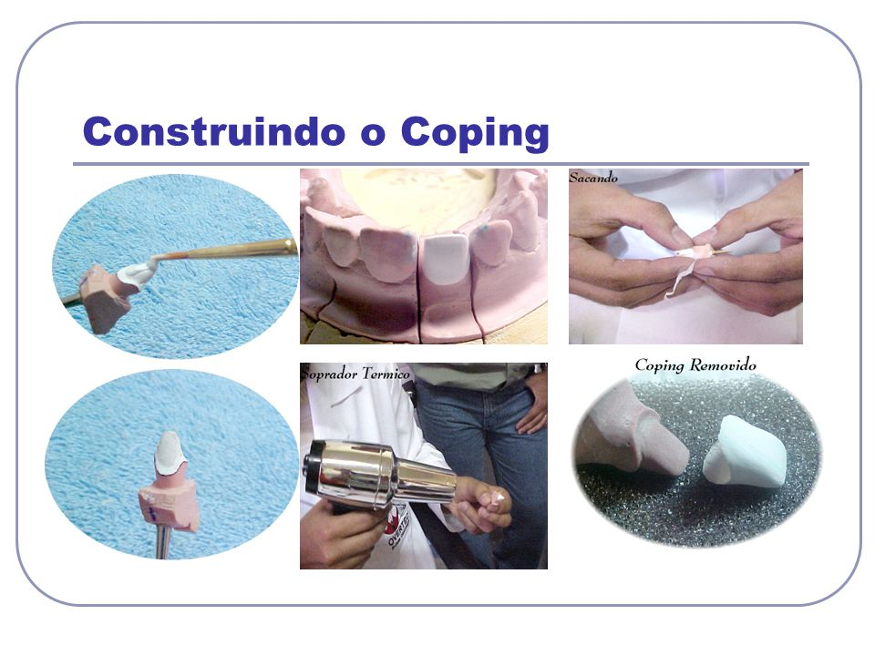 Construindo o Coping