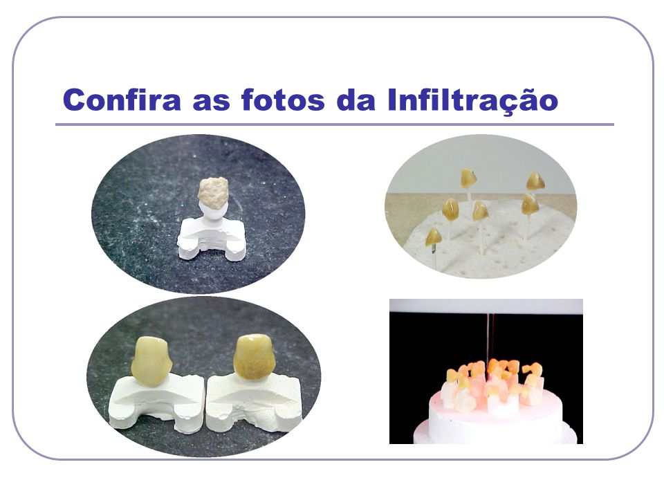 Confira as fotos da Infiltração