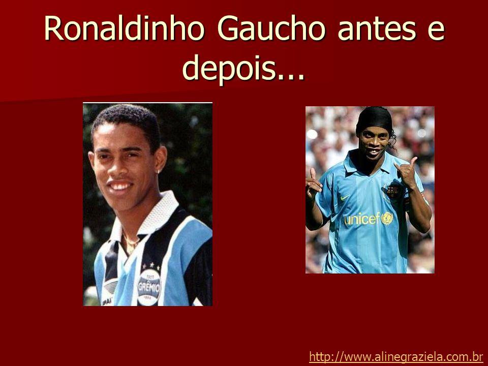 Ronaldinho Gaucho antes e depois...