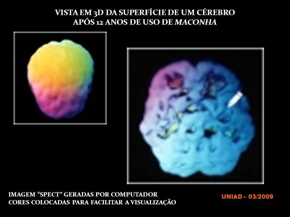 VISTA EM 3D DA SUPERFÍCIE DE UM CÉREBRO APÓS 12 ANOS DE USO DE MACONHA