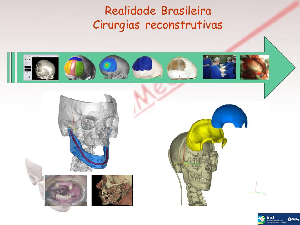 Cirurgias reconstrutivas
