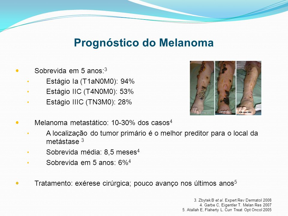 Prognóstico do Melanoma
