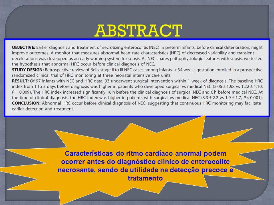 ABSTRACT Características do ritmo cardíaco anormal podem