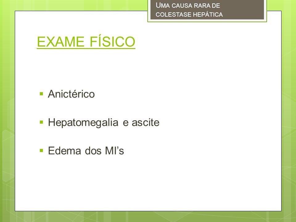 EXAME FÍSICO Anictérico Hepatomegalia e ascite Edema dos MI's