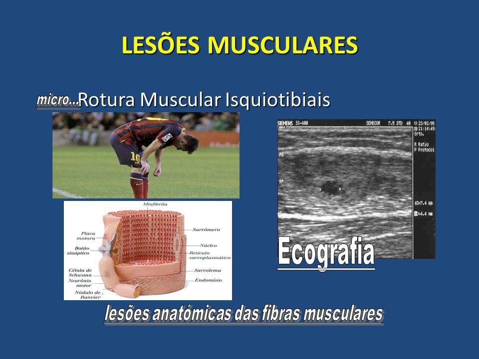 lesões anatómicas das fibras musculares