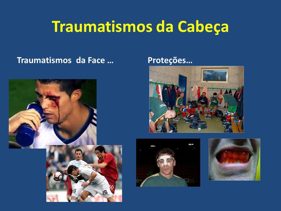 Traumatismos da Cabeça