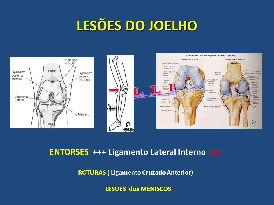 LESÕES DO JOELHO L L I ENTORSES +++ Ligamento Lateral Interno LLI