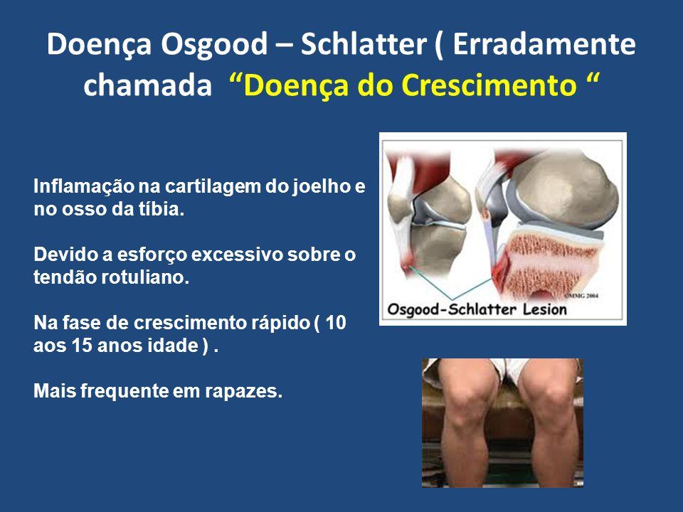 Doença Osgood – Schlatter ( Erradamente chamada Doença do Crescimento