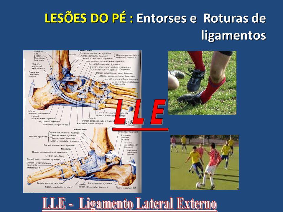 LESÕES DO PÉ : Entorses e Roturas de ligamentos