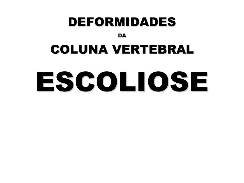 DEFORMIDADES DA COLUNA VERTEBRAL ESCOLIOSE