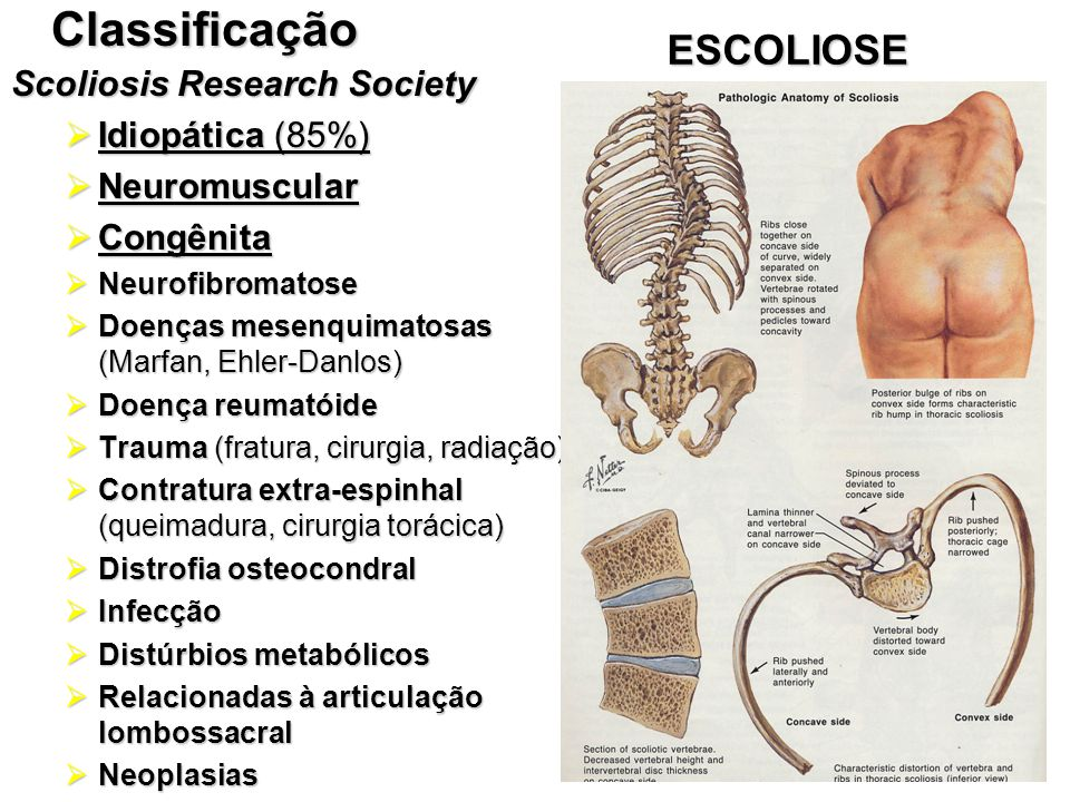 Classificação ESCOLIOSE Scoliosis Research Society Idiopática (85%)