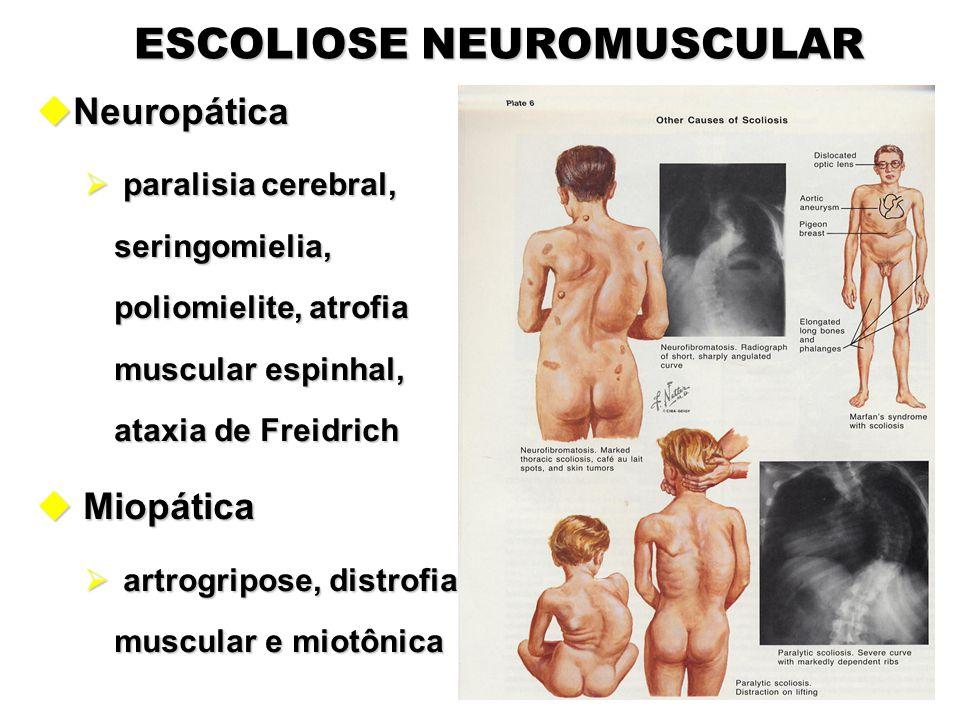 ESCOLIOSE NEUROMUSCULAR