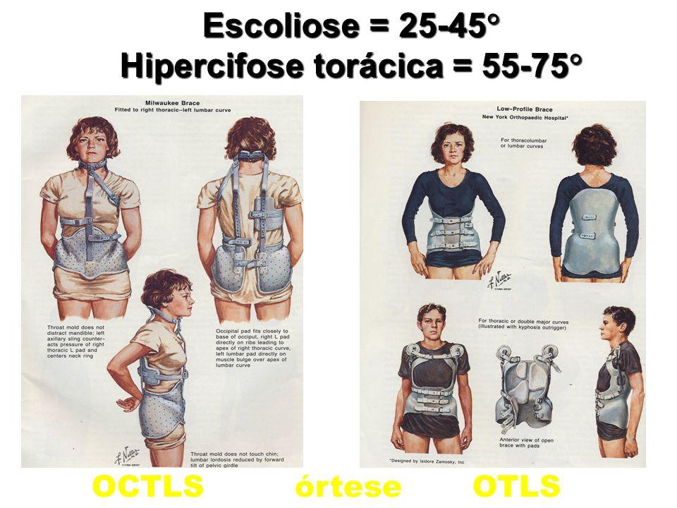 Hipercifose torácica = 55-75