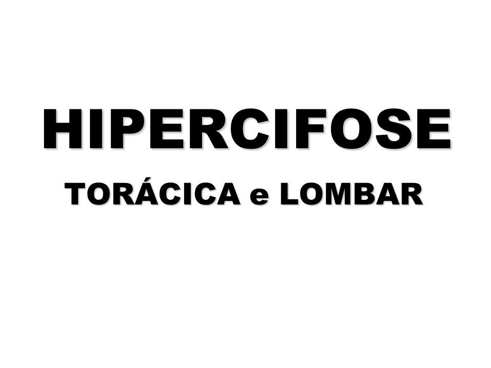 HIPERCIFOSE TORÁCICA e LOMBAR