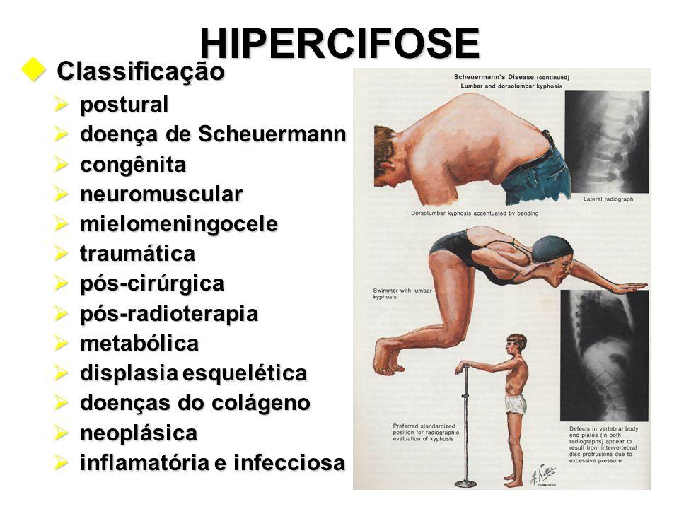 HIPERCIFOSE Classificação postural doença de Scheuermann congênita