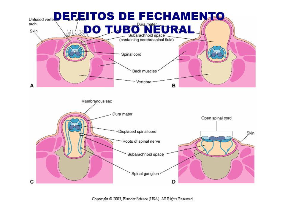 DEFEITOS DE FECHAMENTO